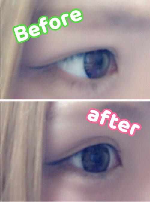 eyep5